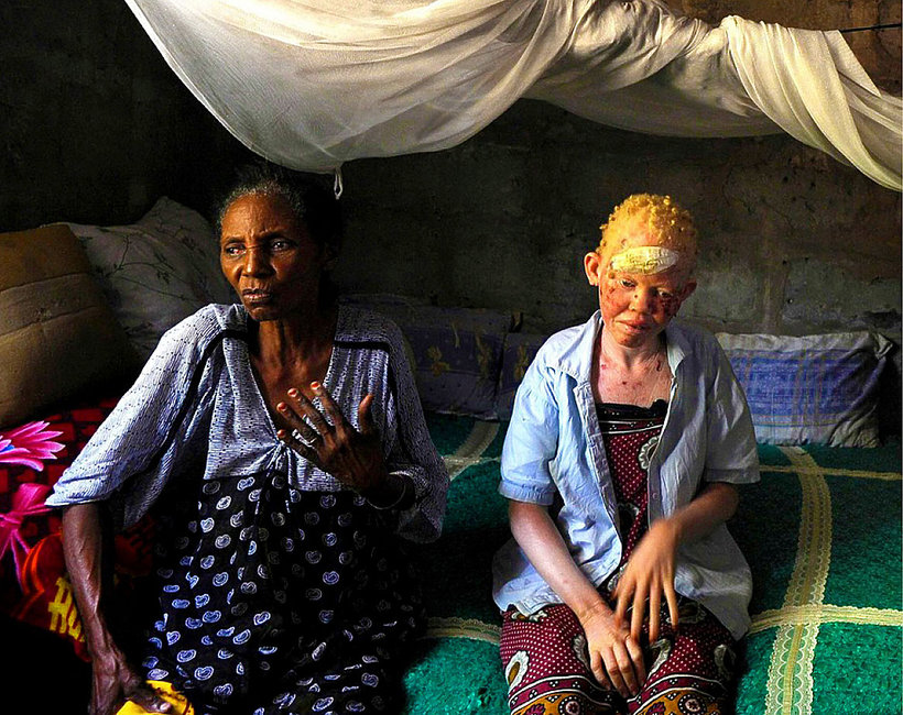 Albinizm, albinosi, osoby z albinizmem