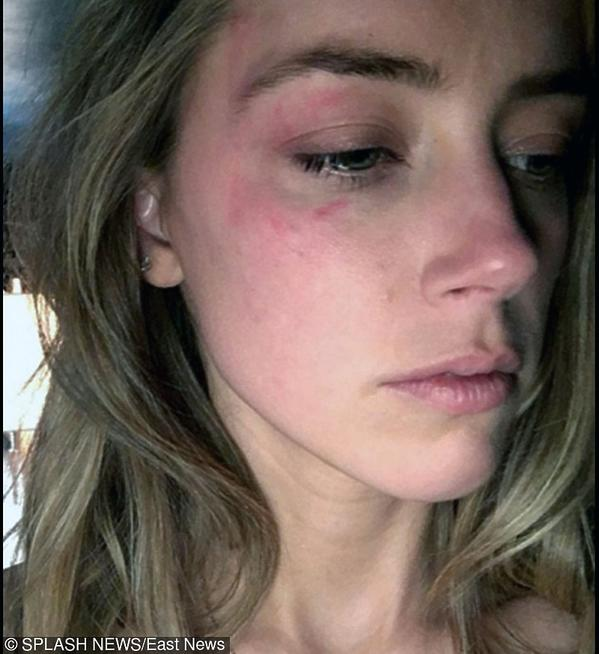 Amber Heard ze śladami pobicia