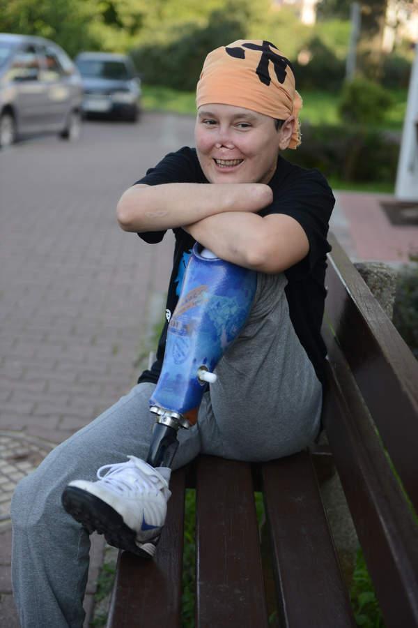 Aneta Zatwarnicka w 2014 roku przez chorobę straciła nogi i ręce. Jak potoczyło się jej życie?