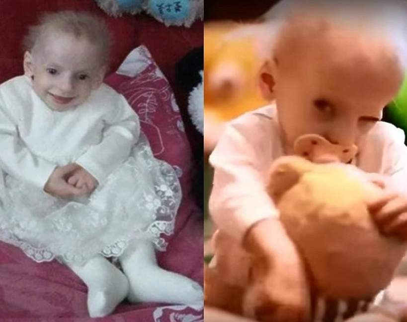 Ania Sakidon, Progeria