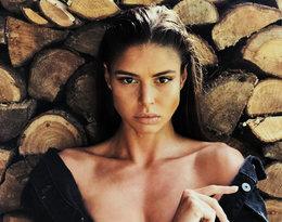 """""""Bałam się, że powiedzą: """"To ta chora"""". Anna Markowska o udziale w Top Model i walce z chorobą!"""