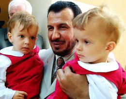 14 lat temu rozdzielono syjamskie bliźniaczki z Janikowa. Teraz spotkały się z doktorem
