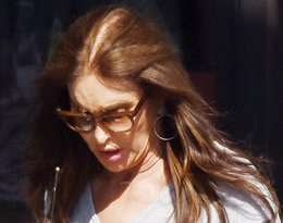 Caitlyn Jenner łysieje