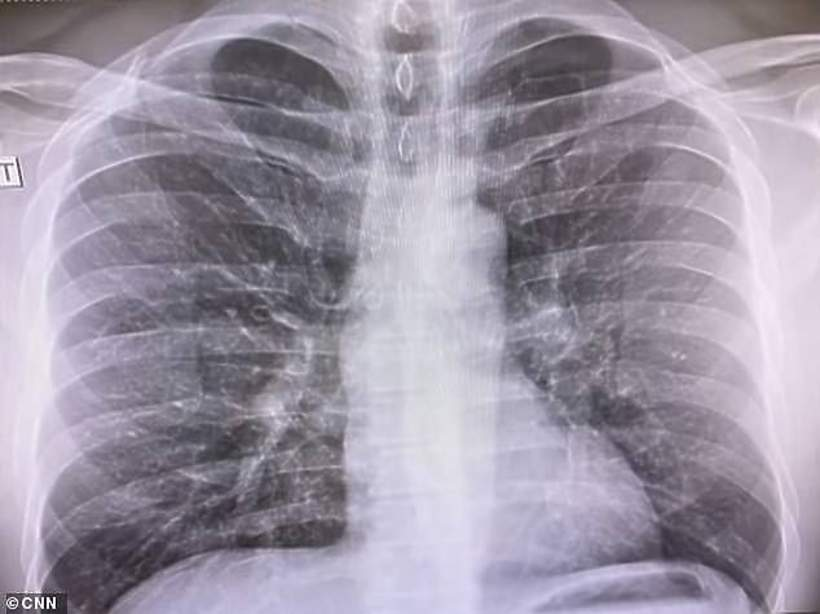 Chris Cuomo, rentgen płuc