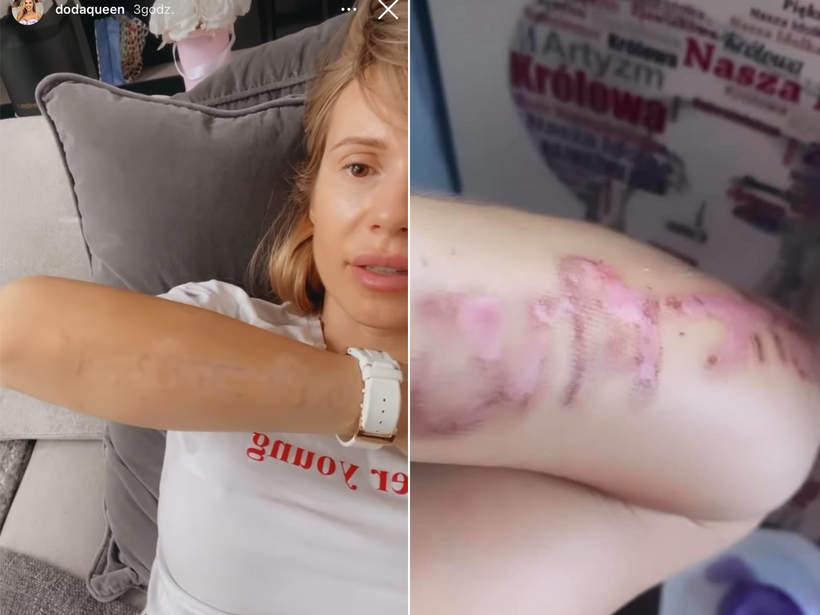 Doda usuwa tatuaż dla Radka