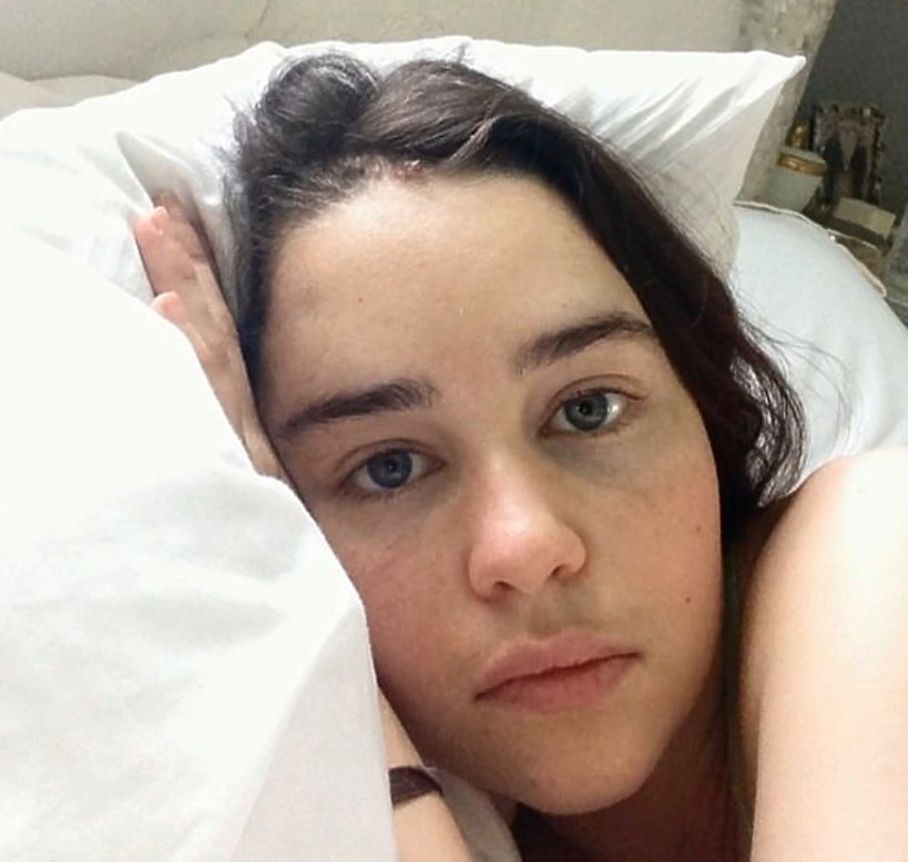 Emilia Clarke w szpitalu