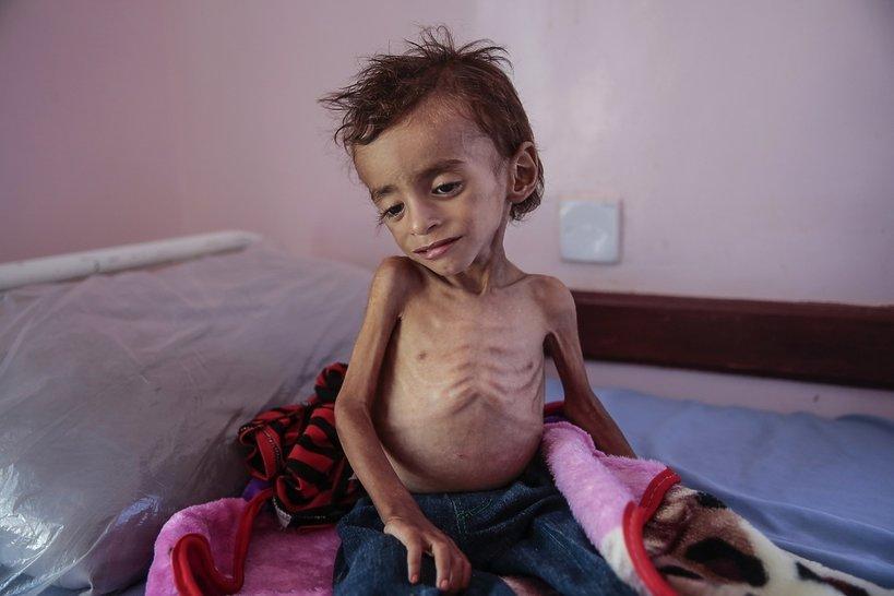 głodująca siedmiolatka na okładce New York Times, klęska głodu w Jemenie