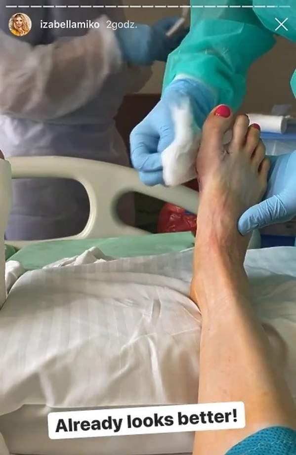 Iza Miko po operacji na haluksy