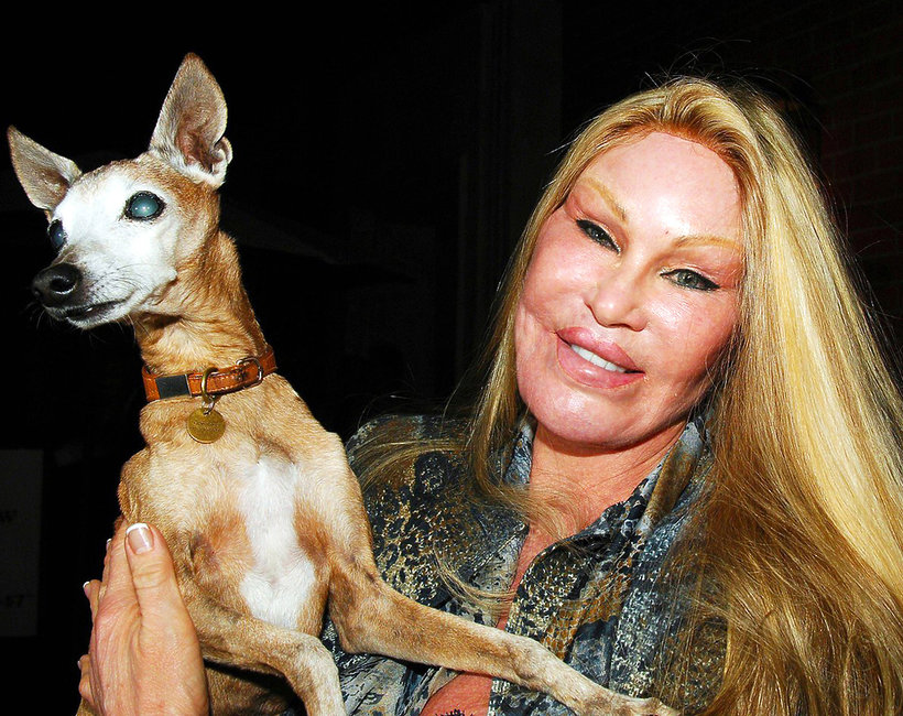 Jocelyn Wildenstein, kobieta-kot