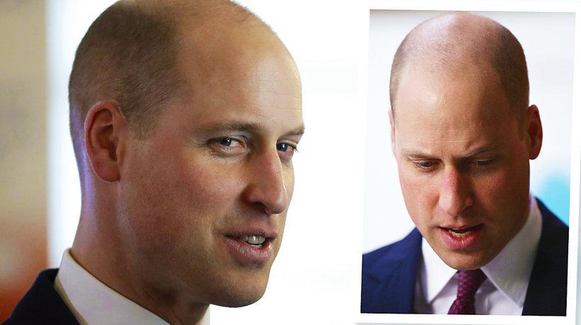 Książę William łysy