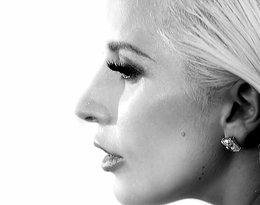 Lady GaGa odwołała koncerty przez bolesną chorobę! Co jej dolega?