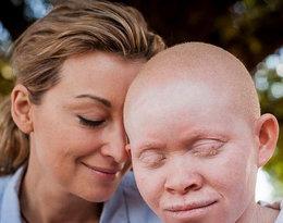 """""""Ciało albinosa warte jest ok. 75 tys. dolarów"""". Wojciechowska i Kabula we wspólnym wywiadzie"""