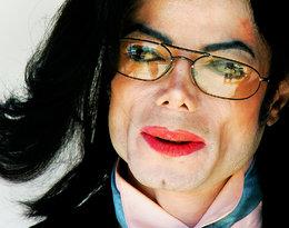 Brak akceptacji i dążenie do niedoścignionego ideału? To dlatego Michael Jackson zmienił kolor skóry?