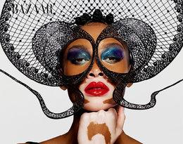 Te zdjęcia to hit sieci! Modelka zbielactwemw zachwycającej sesji dla Harper's Bazaar