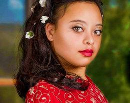 Nastolatka z zespołem Downa podpisała dożywotni kontrakt z agencją modelek!