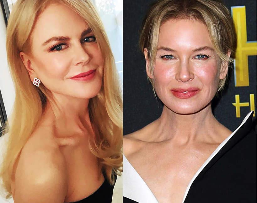 Najwieksze ofiary botoksu w Hollywood 2020