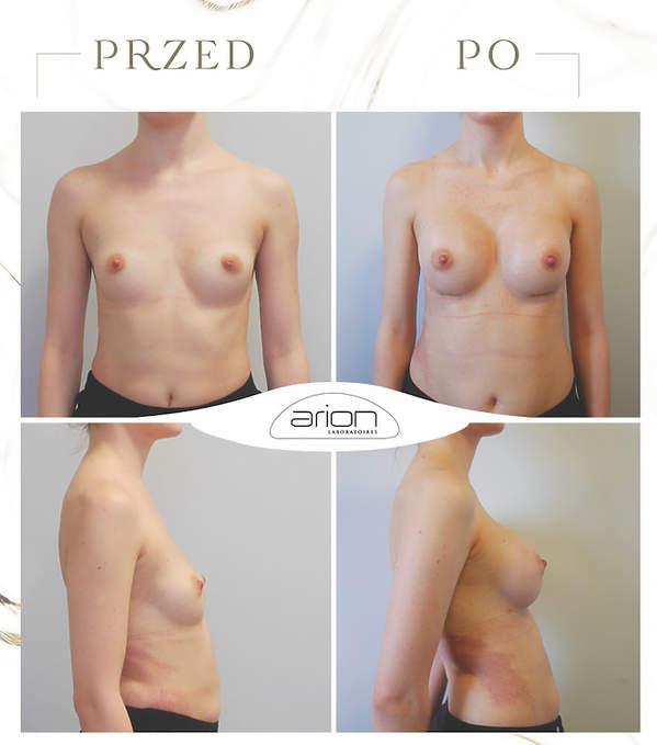 operacja biustu przed i po