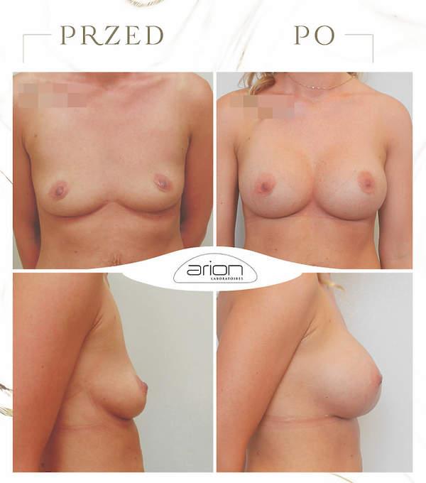 operacja biustu zdjęcia przed i po