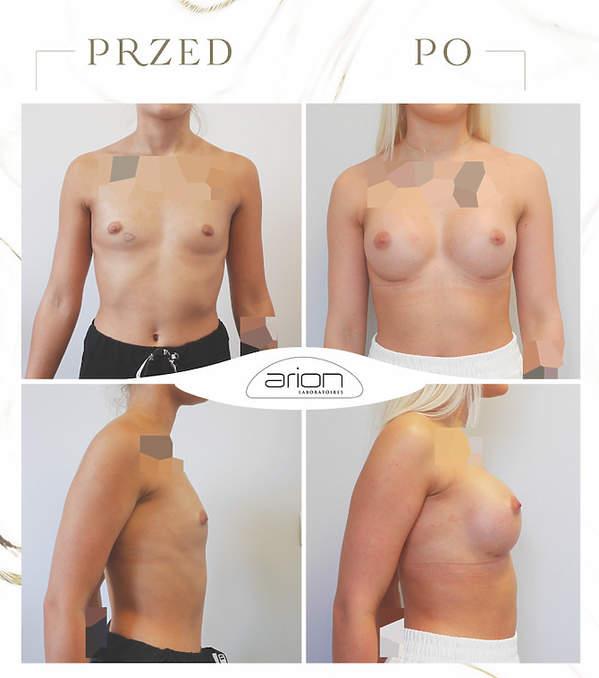 operacja powiększania biustu zdjęcia przed i po