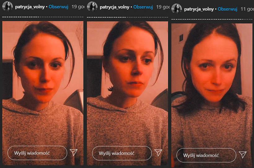 Patrycja Wolny, Patrycja Volny o anoreksji