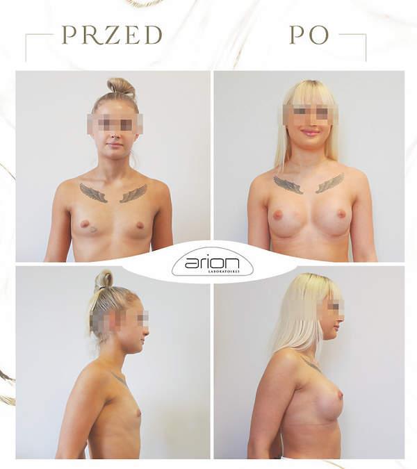 powiększanie biustu przed i po