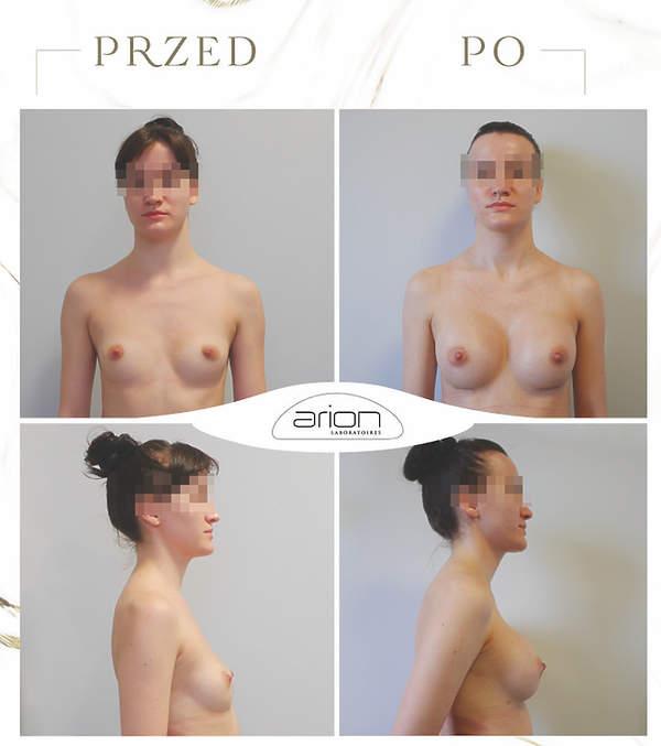 powiększanie biustu zdjęcia przed i po