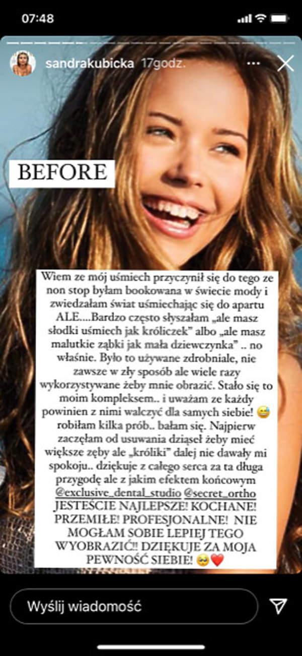 Sandra Kubicka o swoich zębach