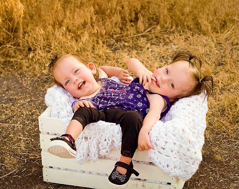 Syjamskie bliźniaczki