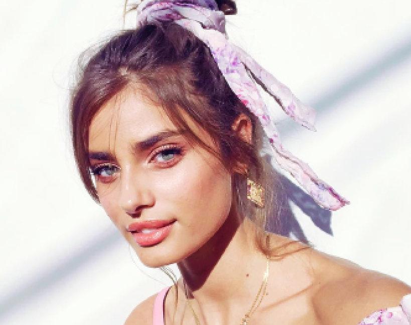 Taylor Hill modelka z trądzikiem