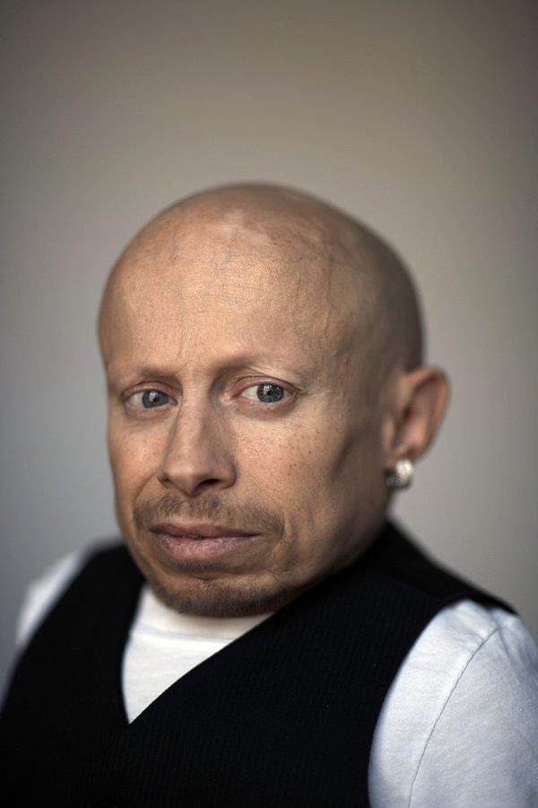 Verne Troyer nie żyje, śmierć gwiazd