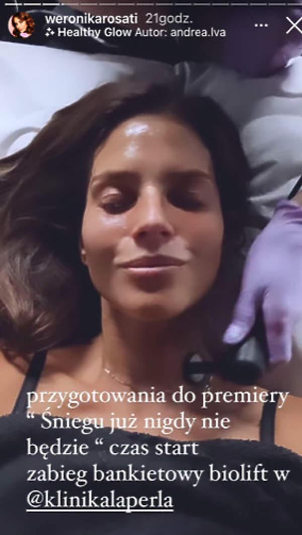 Weronika Rosati zabieg odmładzający biolift