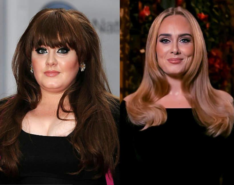 Wszystkie operacje plastyczne Adele