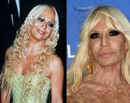Donatella Versace, ofiary botoksu