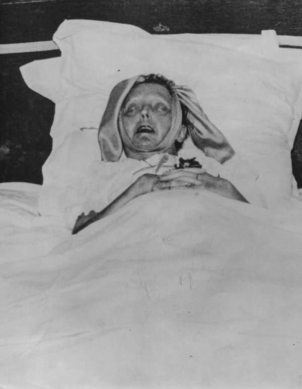 Edith Piaf na łożu śmierci, październik 1963 roku