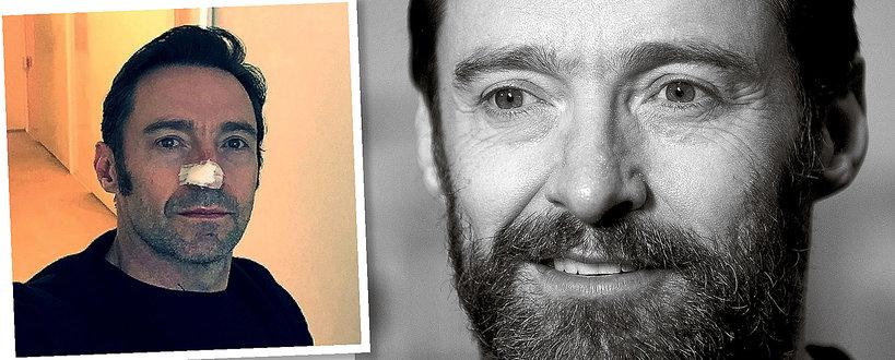 Hugh Jackman, rak skóry, Hugh Jackman rak