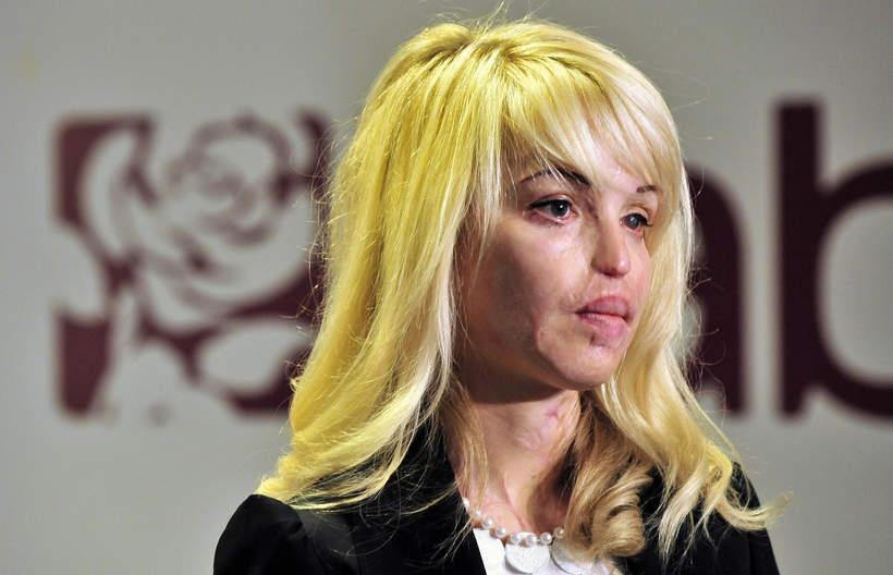 Katie Piper, modelka oblana kwasem