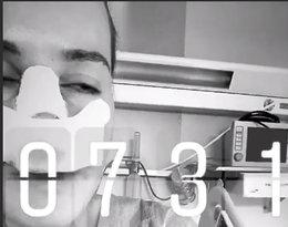Maffashion przeszła operację nosa