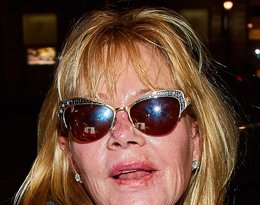 Melanie Griffith stała się ofiarą operacji plastycznych. Jak teraz wygląda była żona Antonio Banderasa