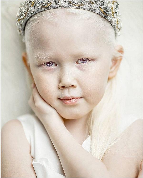 Nariana, niezwykła dziewczynka, albinosi