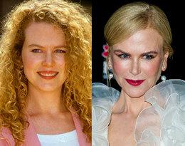 """Media okrzyknęły ją """"królową botoksu"""". Tak zmieniała się Nicole Kidman"""