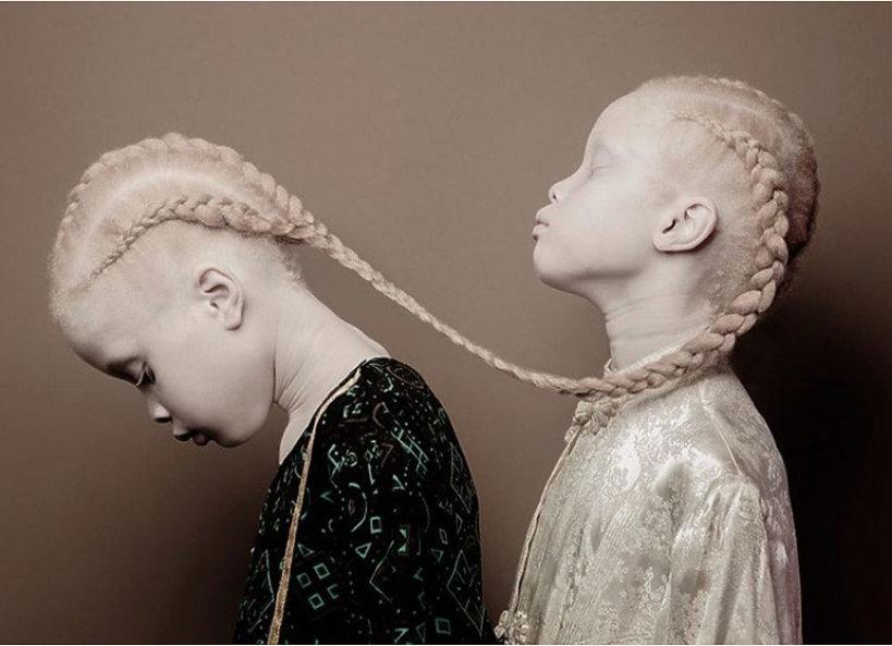 Niezwykłe albinoski