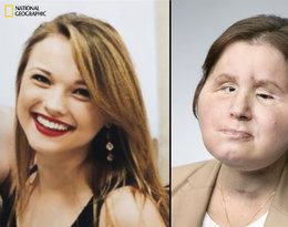 Nowa twarz, nowe życie, Katie Stubblefield