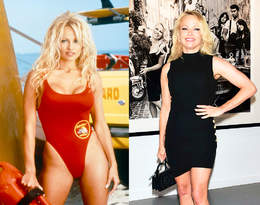 Od symbolu seksu do królowej botoksu. Tak zmieniła się Pamela Anderson!