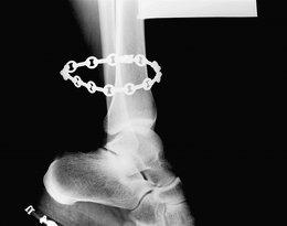 X-Ray, Van Cleef & Arpels