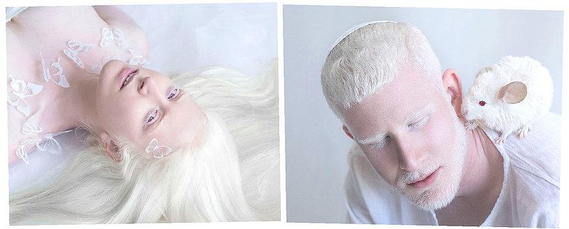 Zdjęcia albinosów