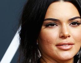 """""""To zupełnie zniszczyło moją samoocenę!"""". Kendall Jenner szczerze o…"""