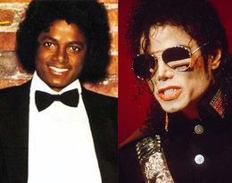 To jedna z największych metamorfoz w historii. Zobacz, jak zmieniał się Michael Jackson!
